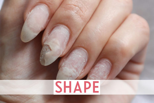 What It Means If You Have Peeling Nails (Plus, How to Fix Them)