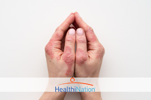 Treating Mild, Moderate and Severe Psoriasis: Options You Should Know