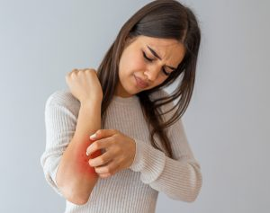 Six Tips to Control Your Atopic Dermatitis (Eczema)