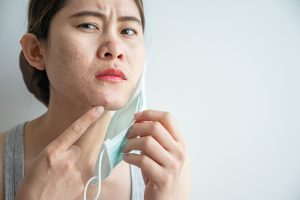 Don't Let Your Face Mask Ruin Your Skin: 6 Tips to Avoiding Maskne
