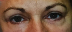 Upper Eyelid Surgery (Blepharoplasty) P1 Patient1 Set1 After Page