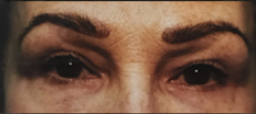 Upper Eyelid Surgery (Blepharoplasty) P2 Patient1 Set1 After Page