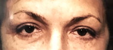 Upper Eyelid Surgery (Blepharoplasty) P3 Patient1 Set1 After Page