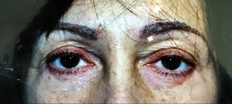 Lower Eyelid Surgery P2 Patient1 Set1 After