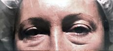Lower Eyelid Surgery P2 Patient1 Set1 Before
