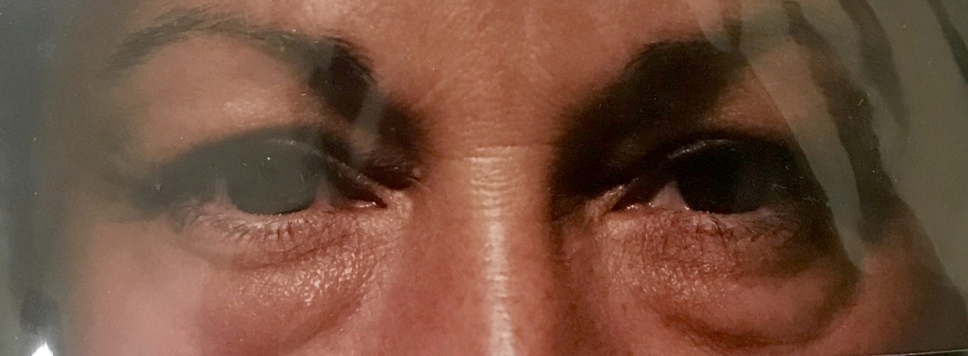 Under eye lift (Blepharoplasty) Patient1 Set1 Before Page