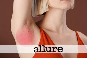 Is Hidradenitis Suppurativa Contagious? Here's What You Need to Know