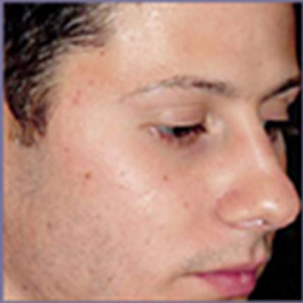Acne Treatment 6 with Acleara Laser Patient1 Set1 After