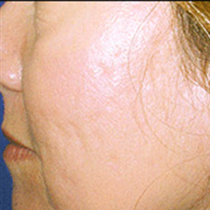 Acne Scars 5 Patient1 Set1 After Page