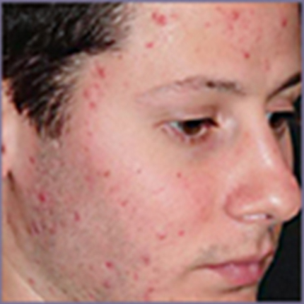 Acne Treatment 6 with Acleara Laser Patient1 Set1 Before