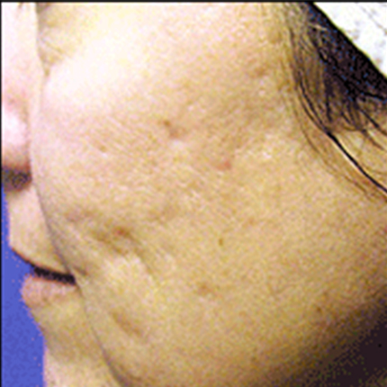 Acne Scars 5 Patient1 Set1 Before Page