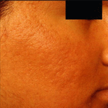 Acne Scars 4 Patient1 Set1 After Page