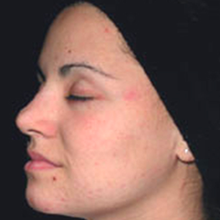 Acne Treatment 5 with Acleara Laser Patient1 Set1 After