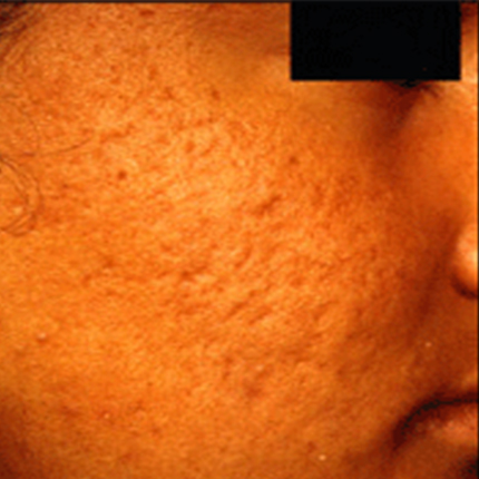 Acne Scars 4 Patient1 Set1 Before Page