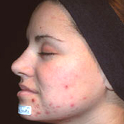 Acne Treatment 5 with Acleara Laser Patient1 Set1 Before