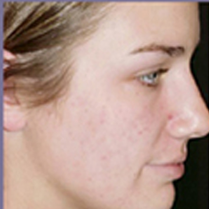 Acne Treatment 4 with Acleara Laser Patient1 Set1 After