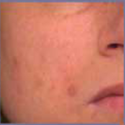 Acne Scars 3 Patient1 Set1 After Page