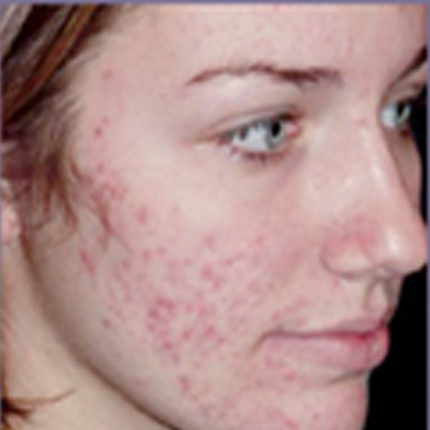 Acne Treatment 4 with Acleara Laser Patient1 Set1 Before