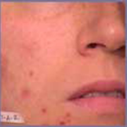 Acne Scars 3 Patient1 Set1 Before Page