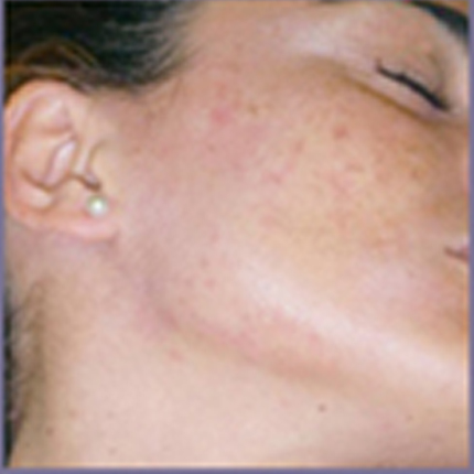 Acne Treatment 3 – with Acleara Laser Patient1 Set1 After