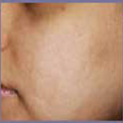 Acne Scars 2 Patient1 Set1 After Page