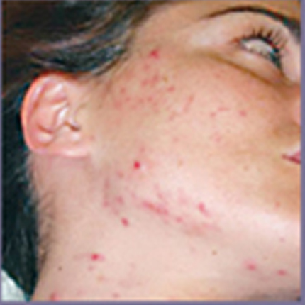 Acne Treatment 3 – with Acleara Laser Patient1 Set1 Before