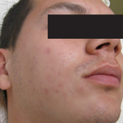 Acne Treatment 2 – with Acleara Laser Patient1 Set1 After