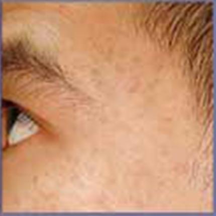 Acne Scars 1 Patient1 Set1 After