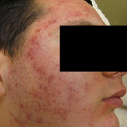 Acne Treatment 2 – with Acleara Laser Patient1 Set1 Before