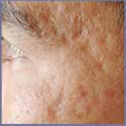 Acne Scars 1 Patient1 Set1 Before Page