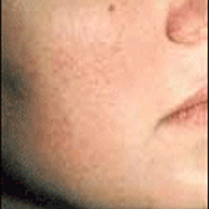 Rosacea – Facial Telangiectasia 2 Patient1 Set1 After Page