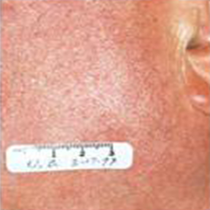 Rosacea – Facial Telangiectasia 4 Patient1 Set1 After Page