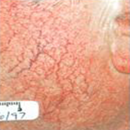 Rosacea – Facial Telangiectasia 4 Patient1 Set1 Before Page