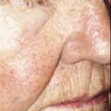 Rosacea – Facial Telangiectasia 1 Patient1 Set1 After Page
