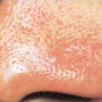 Rosacea – Facial Telangiectasia 3 Patient1 Set1 After