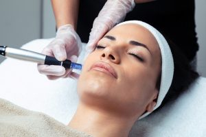 How Micro-needling Works To Make You Look Younger