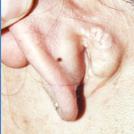 Keloid Scars – 3 Patient1 Set1 After Page