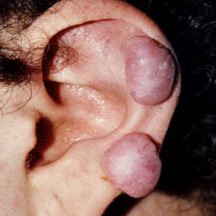 Keloid Scars – 1 Patient1 Set1 Before Page