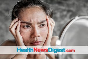 5 Tips to Putting a Stop to Blotchy and Discolored Skin