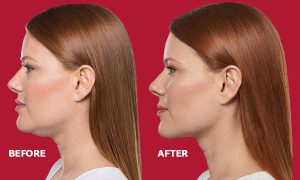 The Ultimate Guide To Kybella
