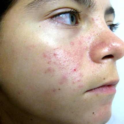 Acne – Acleara Laser – 4 Patient1 Set1 Before Page