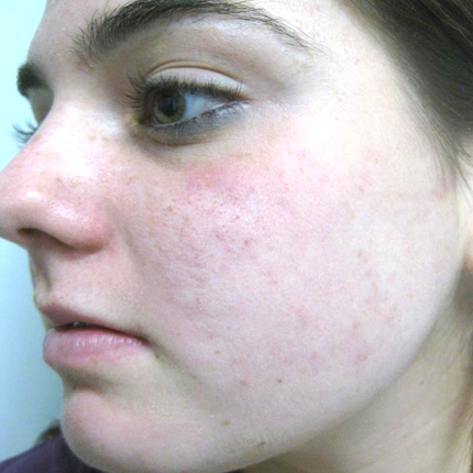 Acne – Acleara Laser 1 Patient1 Set1 After Page