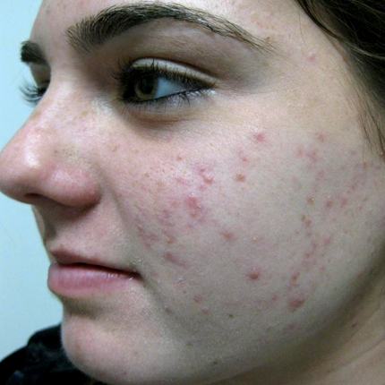Acne – Acleara Laser 1 Patient1 Set1 Before Page