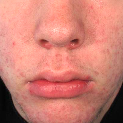 Acne – Acleara Laser -2 Patient1 Set1 After Page