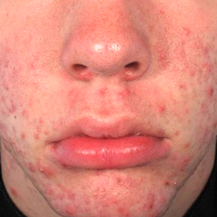 Acne – Acleara Laser -2 Patient1 Set1 Before Page