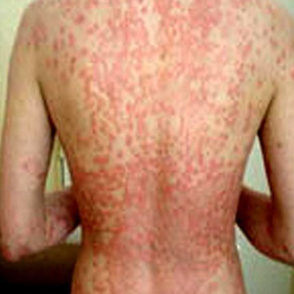 Psoriasis-2 Patient1 Set1 Before Page