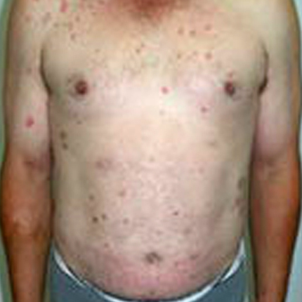 Psoriasis-1 Patient1 Set1 Before Page