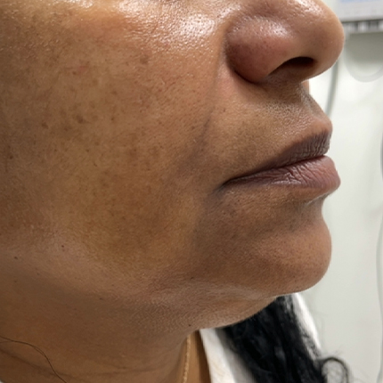 Radiesse: a reduction in the depth of the nasolabial folds Patient1 Set1 After Page