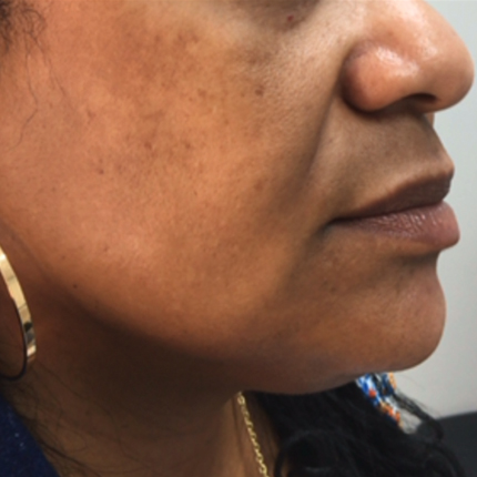 Radiesse: a reduction in the depth of the nasolabial folds Patient1 Set1 Before Page