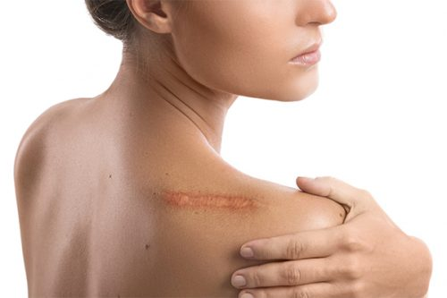 How Scars Form and Two Ways To Treat Them